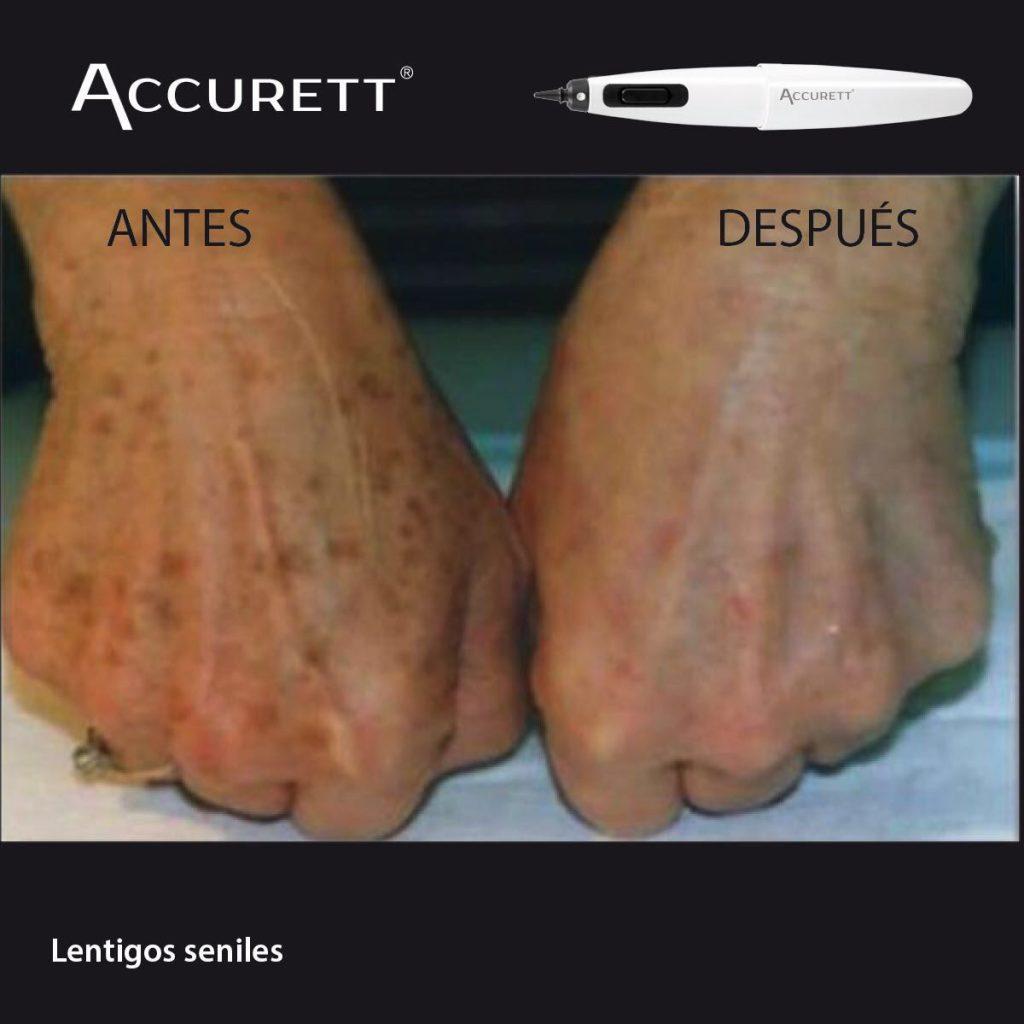 ACCURETT solucion a las manchas de la piel